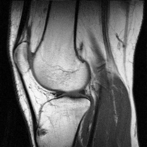 Томография коленного сустава в пушкино реферат на тему основные симптомы при заболевании суставов