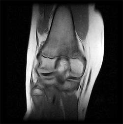 рентген голеностопного сустава при беременности